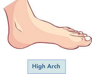 High-arch-deformities